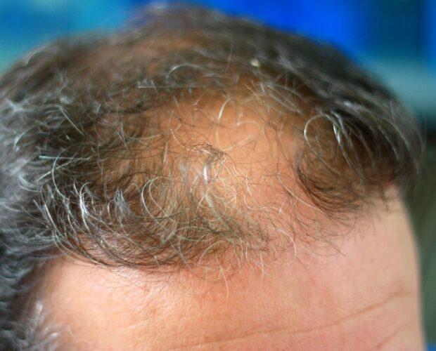 Haargroei en haaruitval